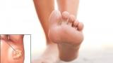 Бородавка на ступне: причины и методы лечения. Подошвенная бородавка