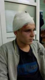 В Глевахе подростки ограбили и проломили череп сын чиновника