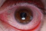 Ожог кварцевой лампой глаз: симптомы, диагностические исследования, медицинское наблюдение и лечение