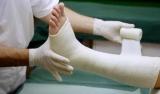 Обезболивающие при переломах костей