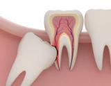 После удаления зуба мудрости не открывается рот: причины, симптомы и проблемы с челюстью, лечение и советы стоматологов