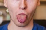 Кончик языка онемели: причины и лечение. При каких заболеваниях кончик языка онемела